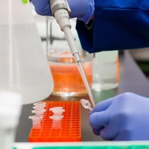 Γενετική προδιάθεση που αυξάνει την πιθανότητα νοσηλείας σε ΜΕΘ για ασθενείς με Covid-19