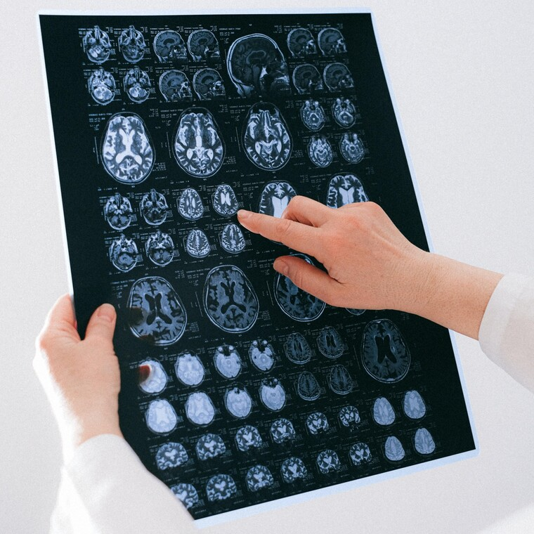 Ένα φάρμακο από φύκια δίνει ελπίδες σε όσους πάσχουν από Alzheimer